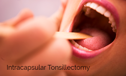 Intracapsular Tonsillectomy